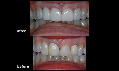 Cosmetic Dentistry in mississauga dentist