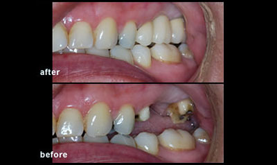 Dental Bridge mississauga dentist