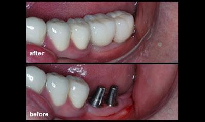 dental implants dr sferlazza