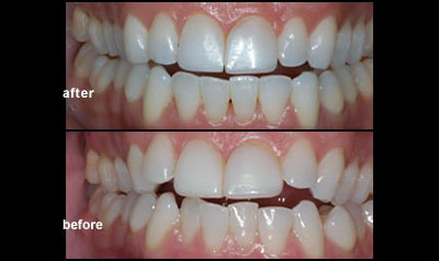 Invisalign Clear Aligners Treatment