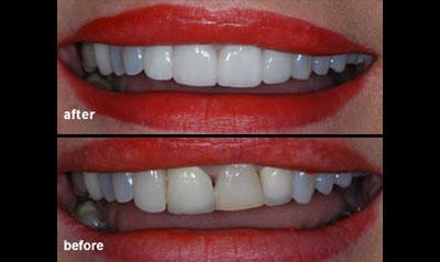 professional teeth whitening dr sferlazza