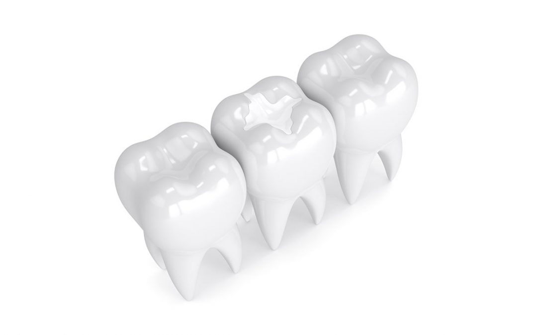 what is a dental filling mississauga dentist