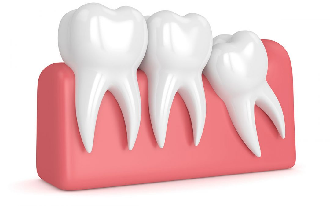 What You Should Know About Wisdom Tooth Extraction